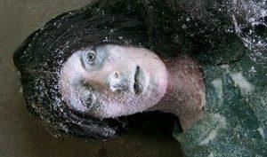 Sự hồi sinh kỳ diệu của cô gái bị đóng băng -30 độ