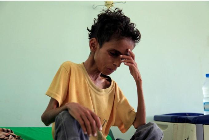 Yemen: Hàng nghìn trẻ em chết vì đói sau 3 năm nội chiến.1