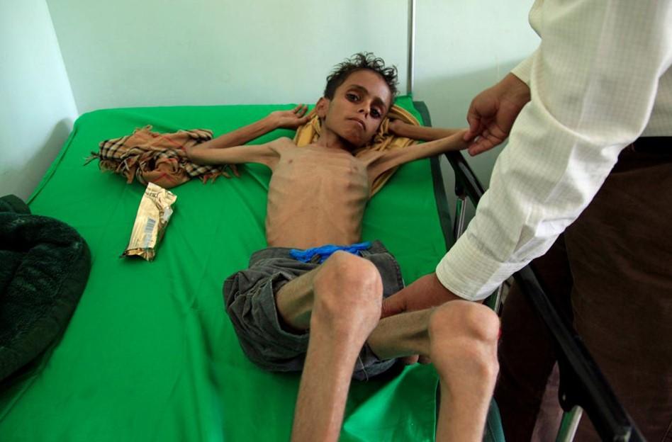 Yemen: Hàng nghìn trẻ em chết vì đói sau 3 năm nội chiến.3