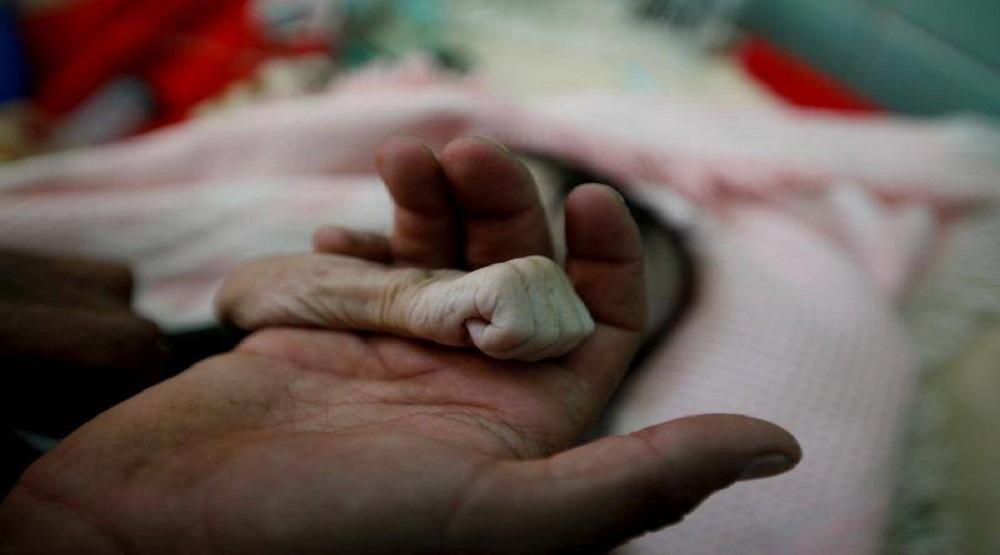 Hàng nghìn người chết đói ở Yemen sau 3 năm nội chiến.(Ảnh: Internet)