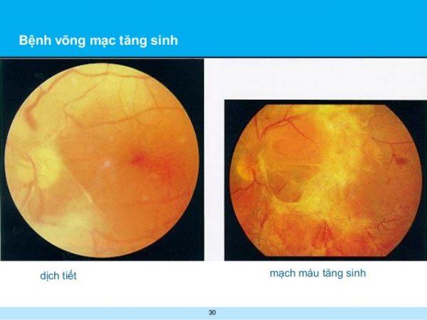 Vì sao nói việc kiểm tra mắt định kỳ đối với bệnh nhân tiểu đường là vô cùng quan trọng?.3
