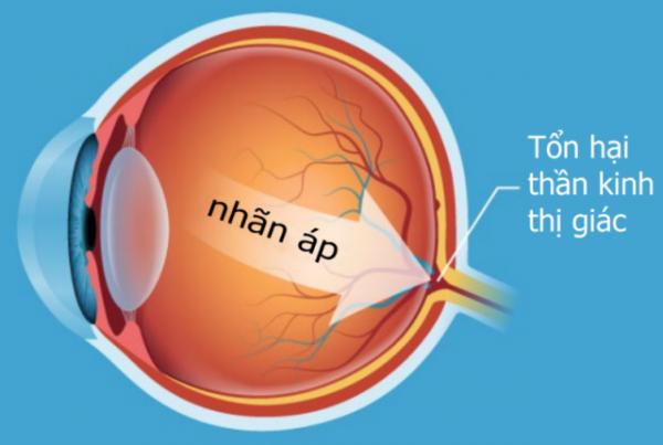 Vì sao nói việc kiểm tra mắt định kỳ đối với bệnh nhân tiểu đường là vô cùng quan trọng?.2