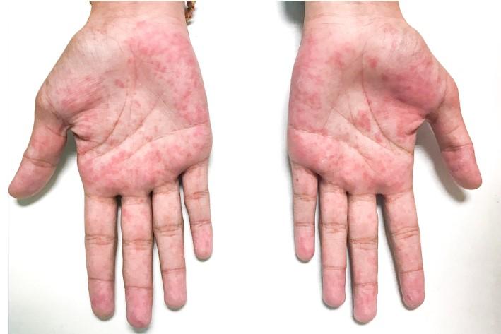 Nhận biết tình trạng sức khỏe tiềm ẩn của bạn qua 10 dấu hiệu trên bàn tay.8
