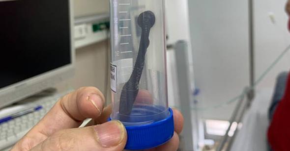 Hy hữu: Con đỉa dài 15 cm sống trong khí quản người đàn ông