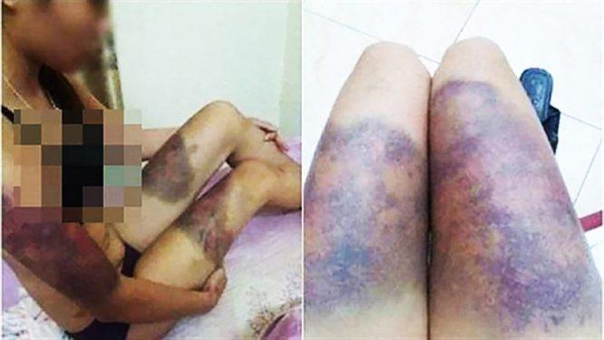 Thai phụ 18 tuổi bị nhóm người giam lỏng, tra tấn suốt 2 tuần dẫn đến sảy thai - H1