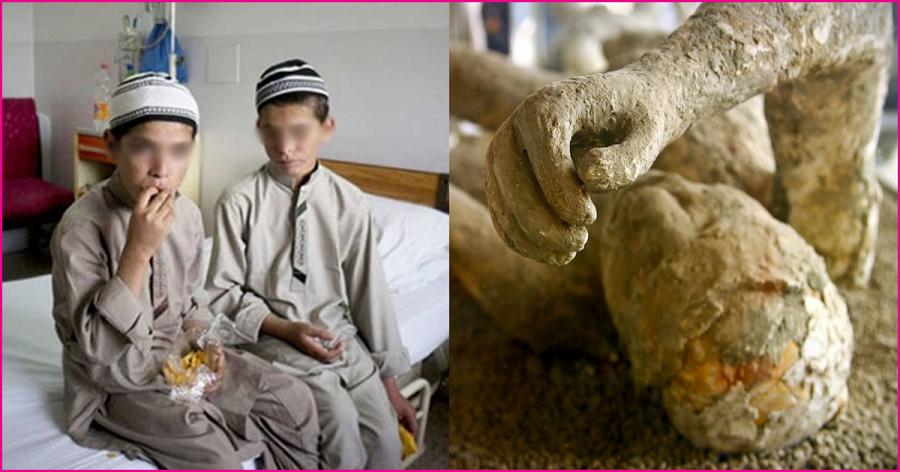 Kì lạ 'đứa trẻ của Mặt Trời': Sáng là người, đêm hóa đá