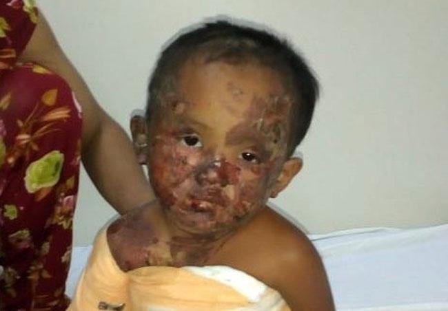 Quảng Trị: Bé gái 3 tuổi bị bỏng nặng do nồi cháo đổ thẳng vào đầu - H2