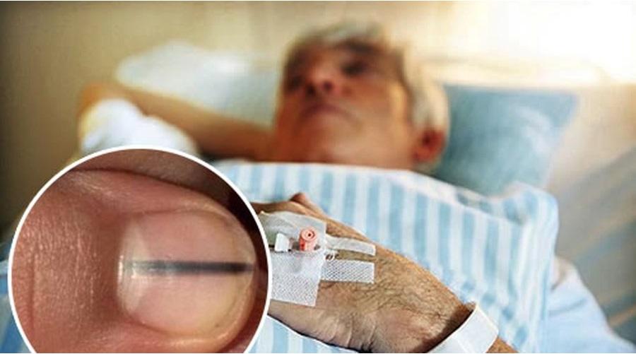 Vết đen trên móng tay có thể là dấu hiệu của một căn bệnh nguy hiểm. (Ảnh qua Mofiin)