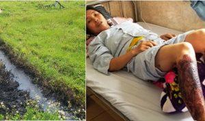 Lội qua mương nước bắt cua đồng, người phụ nữ bị bỏng rộp cả 2 chân do nhiễm hoá chất