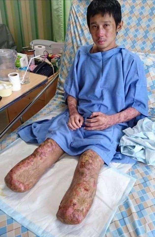 Ăn tiết lợn, nam thanh niên phải cắt bỏ đôi chân để giữ lại mạng sống - H4