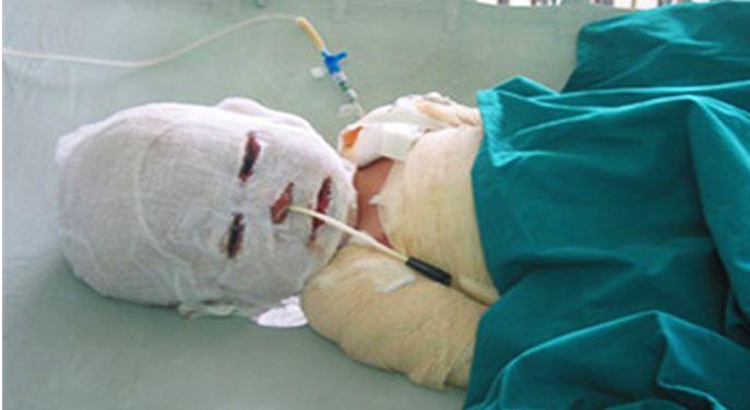 Uống nhầm nước sôi vừa nấu, bé trai ở Nghệ An tử vong khi mới 19 tháng tuổi - h1