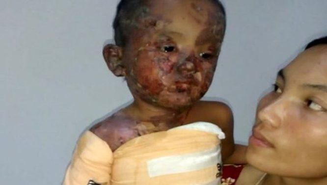 Quảng Trị: Bé gái 3 tuổi bị bỏng nặng do nồi cháo đổ thẳng vào đầu - H1