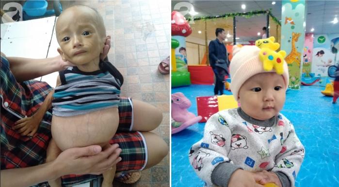 Bé trai 1 tuổi bị u bào gan, bụng chướng chỉ còn da và xương.1