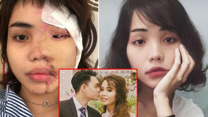 Câu chuyện của cô gái Đà Nẵng tên Lan Vy, bị chồng sắp cưới tạt axit. (Ảnh qua ĐKN)