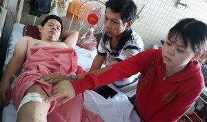 Ngã chấn thương cột sống, đến bệnh viện bị bác sĩ đè ra khoan vào cẳng chân!