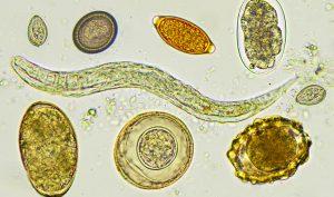 Giun đũa: Những điều bạn cần biết về bệnh truyền nhiễm này