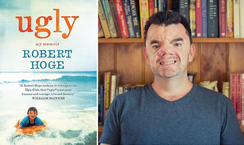 """Robert Hoge và cuốn sách """"Ugly"""" (Xấu xí) của mình."""
