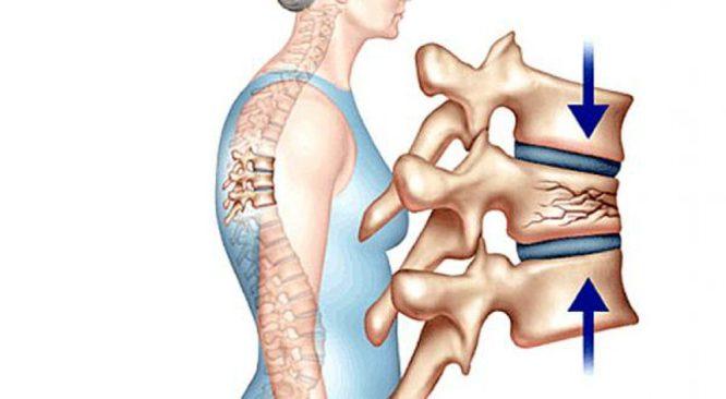 Muối biển có tác dụng phòng ngừa bệnh loãng xương. (Ảnh qua baomoi.com).2