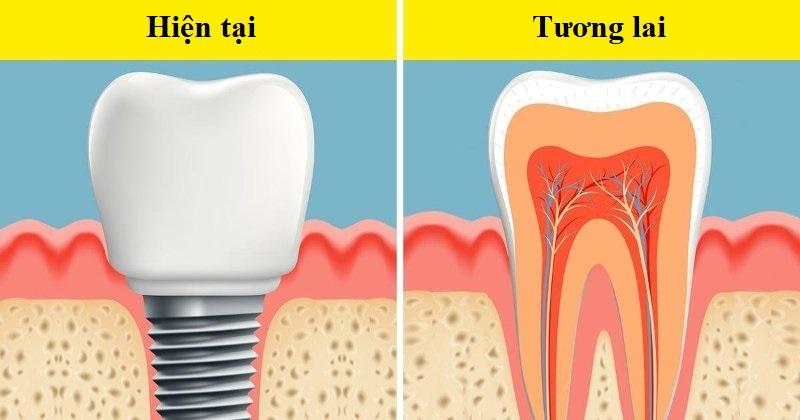 Trong trương lai không xa, mọi người có thể không cần đi chồng răng giả nữa. (Ảnh qua LinkedIn)