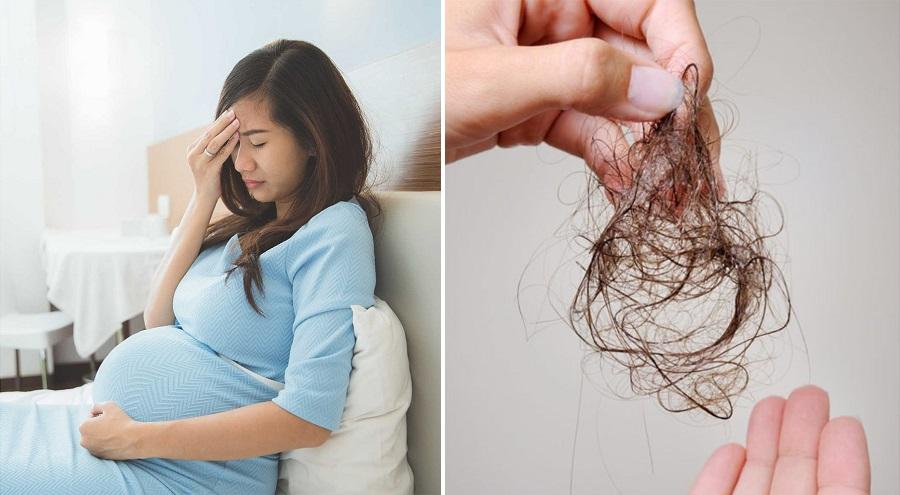 Rụng tóc khiến các mẹ bầu lo lắng. (Ảnh qua cloudfront.net)