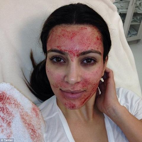 Phương pháp làm đẹp bằng máu tự thân từng được Kim Kardashian trải nghiệm và đăng tải hình ảnh vào năm 2013. (Ảnh qua Twitter)