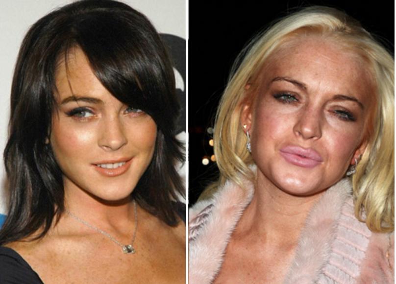 Miệng nữ diễn viên Lindsay Lohan bị biến dạng sau khi tiêm botox làm đầy môi. (Ảnh qua Affaires de Gars)