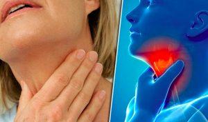 4 thói quen được xem là hung thủ gây ung thư vòm họng