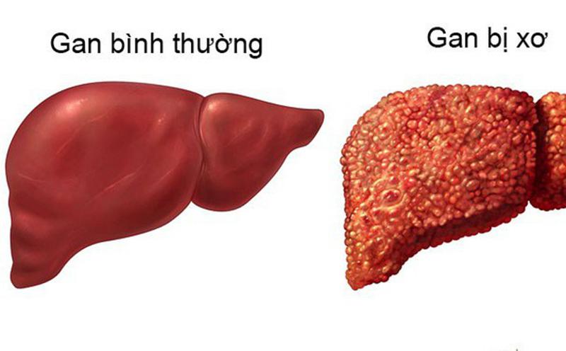 Hạt đu đủ không chỉ thanh lọc mà còn có tác dụng đẩy lùi bệnh xơ gan. (Ảnh qua Healthy Life)