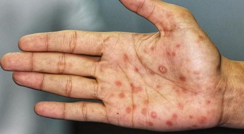 Nốt vảy đỏ ở bàn tay là dấu hiệu của bệnh giang mai.