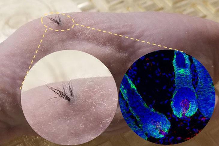 Các nhà khoa học đã khiến tóc mọc thành công bằng cách sử dụng tế bào gốc của người cấy lên chuột. Hình phía trên được ghi lại dưới huỳnh quang kính hiển vi là hình ảnh nang tóc phát triển dưới da. (Ảnh: Daily Mail)