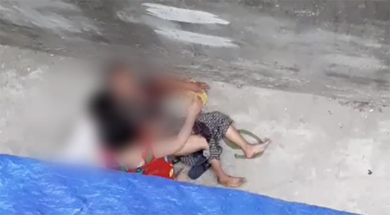Cụ bà 76 tuổi ở Hà Nội bị chó dữ cắn phải nhập viện