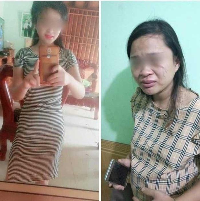 Hình ảnh chị Thoa được em gái chia sẻ trước và sau khi lấy chồng, bị đánh.