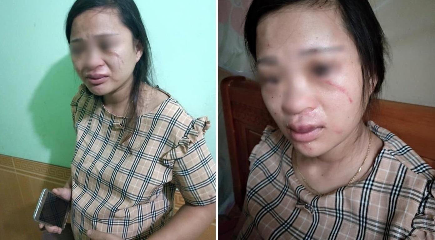 Chồng đánh vợ động thai vì lén mua đôi giày 135 ngàn