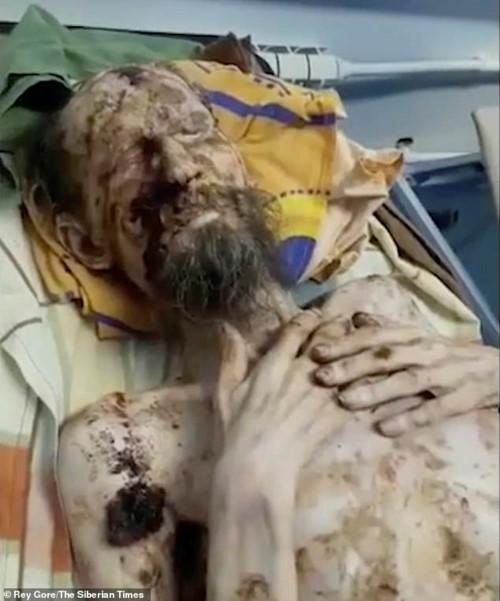 Người đàn ông trông nhưu xác ướp