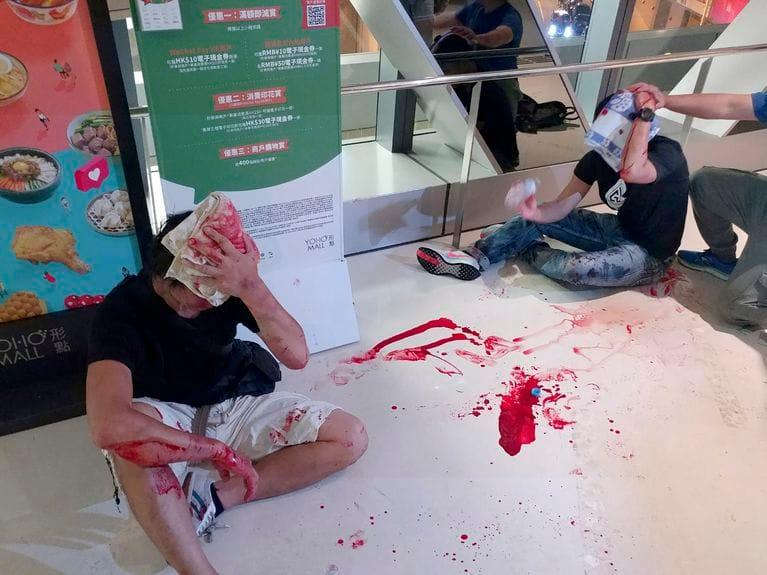 Hai thanh niên bị thương chảy máu sau khi bị côn đồ áo trắng tấn công tại ga tàu điện ngầm ở Hồng Kông, ngày 21/7/2019. (Ảnh qua AP)