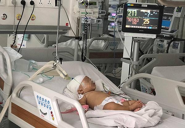 Em bé bị khỉ cắn lún sọ đang điều trị tại bệnh viện