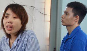 Tuyên án 6 năm tù giam cho Thiếu úy công an tạt axit vợ sắp cưới