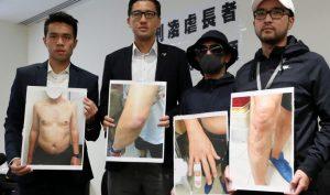 Hong Kong: Hai cảnh sát bị bắt vì tra tấn ông lão 62 tuổi trong bệnh viện