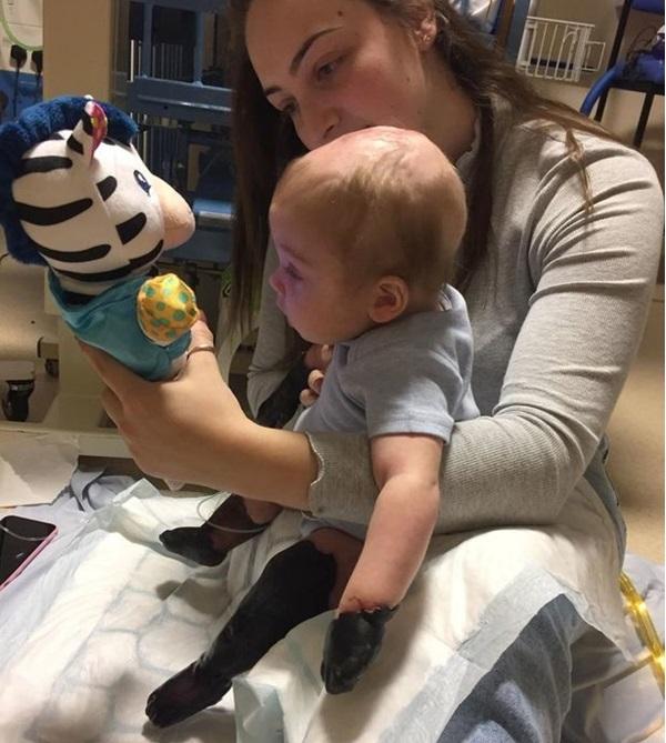 Chỉ vì viêm họng mà trong vòng 48h, cậu bé Oliver 11 tháng tuổi đã mất đi tứ chi của mình.