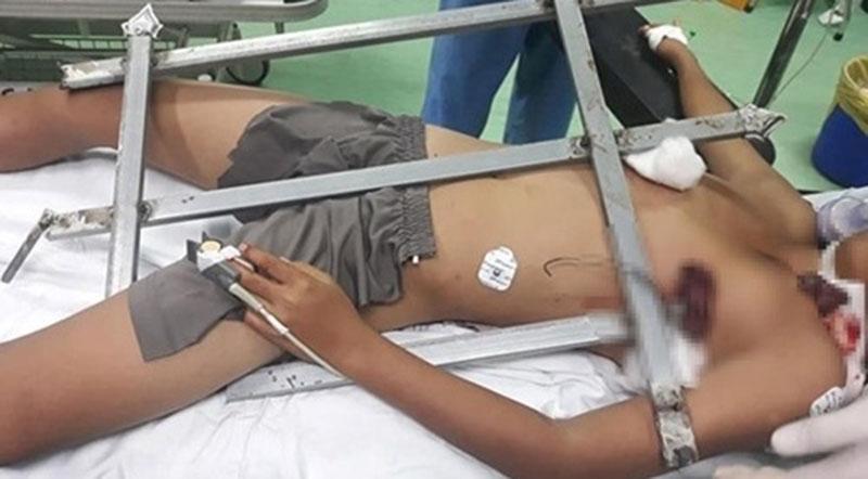 Bé trai được đưa tới bệnh viện cùng đoạn hàng rào sắt có mũi nhọn đâm xuyên ngực. (Ảnh qua thannien)