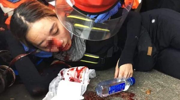 Cô gái bị cảnh sát Hong Kong bắn đạn túi vải vào mắt hôm 11/8. (Ảnh qua chinese.efreenews.com)