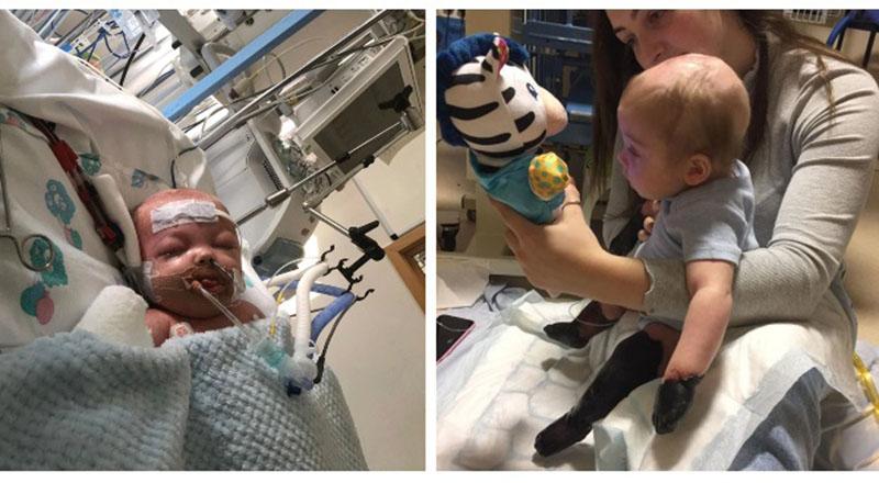 Bé trai 11 tháng rụng hết tay, chân sau 2 ngày viêm họng. (Ảnh qua dkn)
