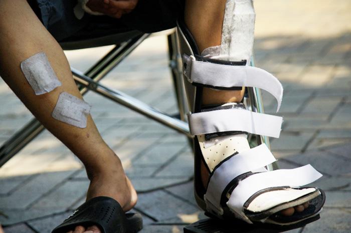 bác sĩ cho biết các dây thần kinh trên bề mặt bắp chân của anh đã bị cắt đứt và không thể phục hồi, một phần bắp chân vĩnh viễn mất tri giác.