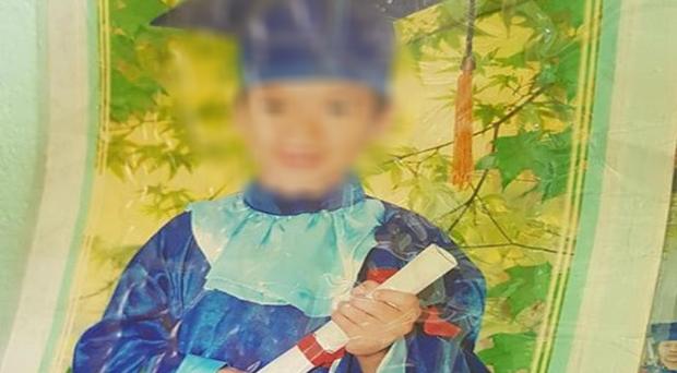 Gia đình cho rằng bé trai nhập viện bị gãy xương chậu, nhưng bác sĩ tại Bệnh viện Nhi đồng Đồng Nai lại mổ ruột thừa. (Ảnh qua plo)
