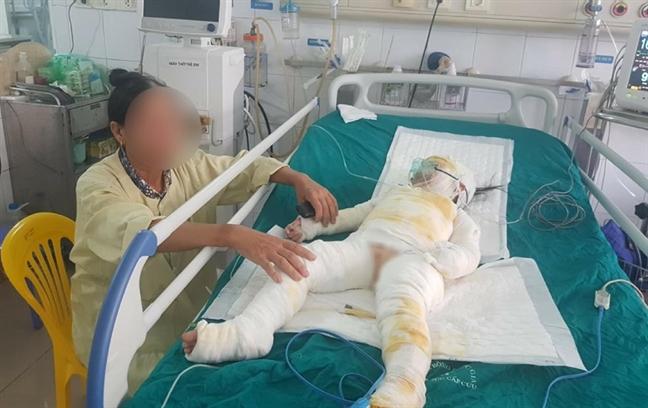 3 bé bị bỏng nặng do cồn: Bác sĩ tiên lượng tình hình có thể xấu đi - ảnh 3