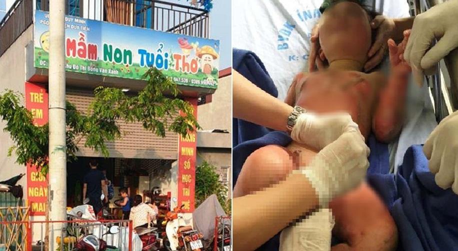 Dùng cồn dạy PCCC, cô giáo vô tình khiến 3 trẻ bị bỏng