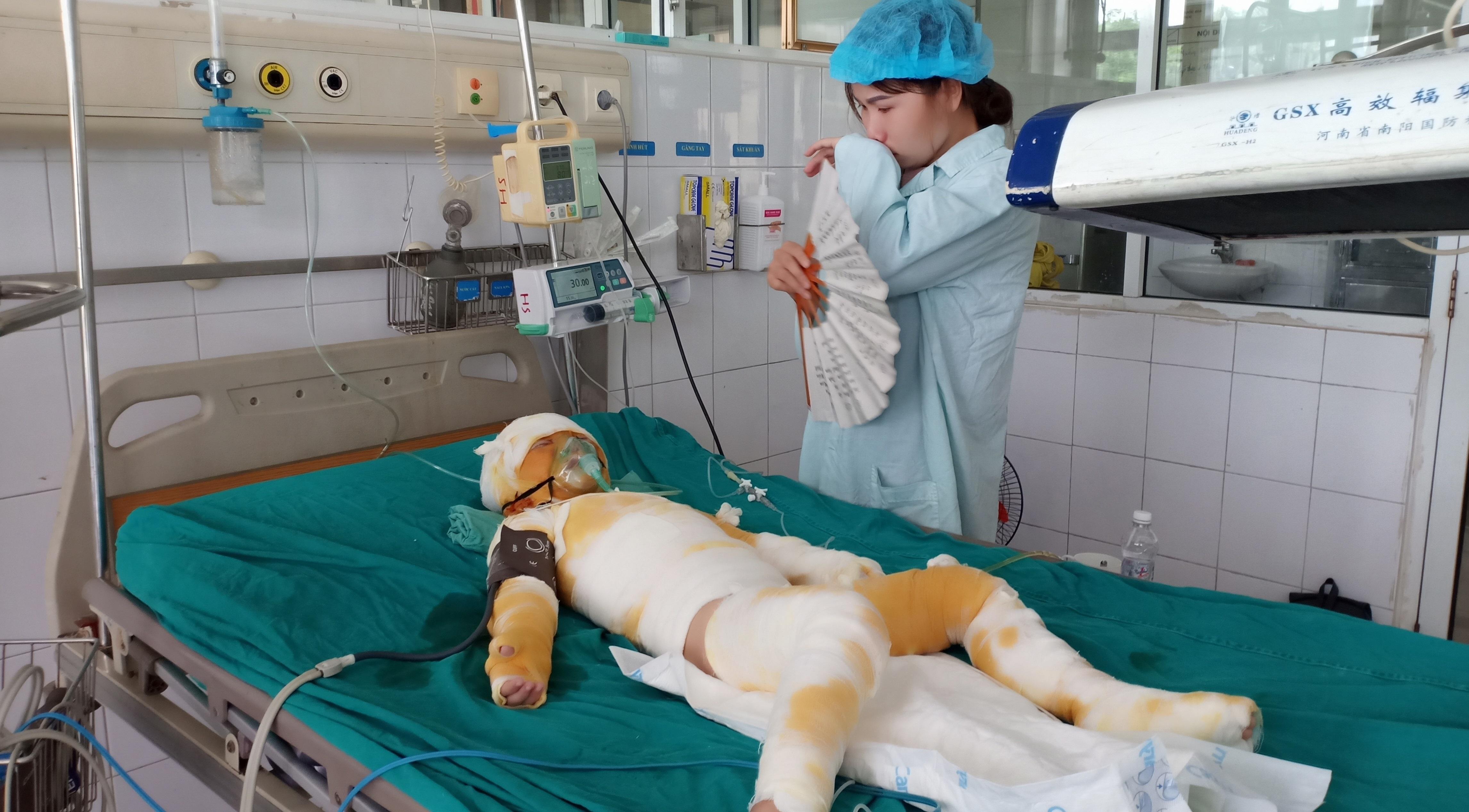 Em bé bị bỏng nặng sau vụ học lớp kỹ năng