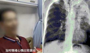 Hát karaoke liên tiếp 10 bài tông cao, 1 người đàn ông phải nhập viện vì xẹp phổi