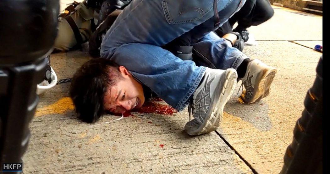 Một người biểu tình bị cảnh sát đè chặt xuống đường đến mức mặt bị thương đầy máu (Ảnh: HKFP).