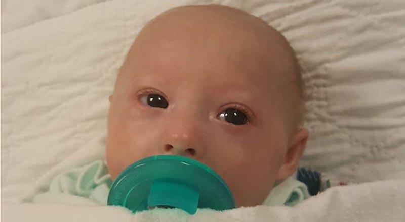 Vì mắc bệnh hiếm gặp nên Matthew dù đã 3 tuổi nhưng lại phải sống trong hình hài của một em bé sơ sinh. (Ảnh qua wlky)